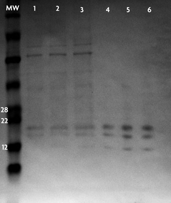 Purity of the core histones isolated with the Histone Purification Microplate Kit