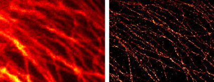 Comparison of conventional widefield microscopy and GSDIM microscopy using ATTO 647N (STED/GSD) Goat anti-mouse IgG secondary antibody